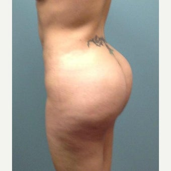 25-34 Year old Woman Treated with Brazilian Butt Lift (Fat Grafting) after 2150827