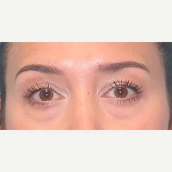 35-44 year old woman treated with Eyelid Surgery before 3589959