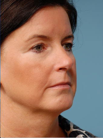 Face lift, Endoscopic Brow lift, Chin Augmentation and Upper Blepharoplasty before 518970