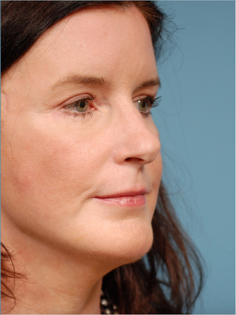Face lift, Endoscopic Brow lift, Chin Augmentation and Upper Blepharoplasty after 518970