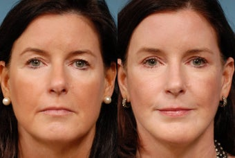 Face lift, Endoscopic Brow lift, Chin Augmentation and Upper Blepharoplasty 518970