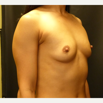 Breast Implants before 3807145