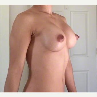 Breast Implants after 3807145
