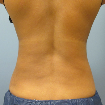 45-54 year old woman treated with CoolSculpting after 3763750