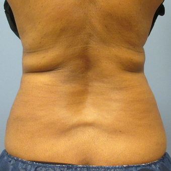 45-54 year old woman treated with CoolSculpting before 3763750