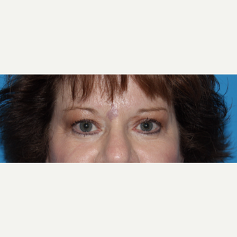 55-64 year old woman treated with Eyelid Surgery before 3332801