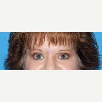 55-64 year old woman treated with Eyelid Surgery after 3332801