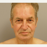 55-64 year old man treated with Facelift before 3109377