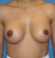 Breast Augmentation/Enlargement after 384681