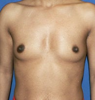 Breast Augmentation/Enlargement before 384681