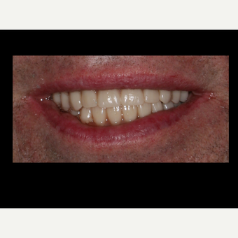 65-74 year old man treated with All-on-4 Dental Implants after 3056695