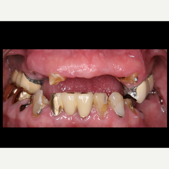 65-74 year old man treated with All-on-4 Dental Implants before 3056695