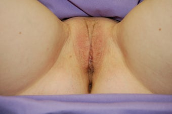 36 year old for labiaplasty