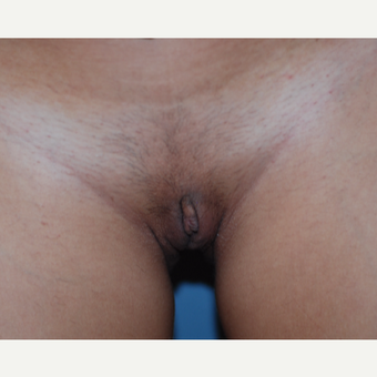 18-24 year old woman treated with Labiaplasty after 3783543