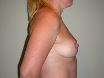Breast lift, abdominoplasty, liposuction after 273342