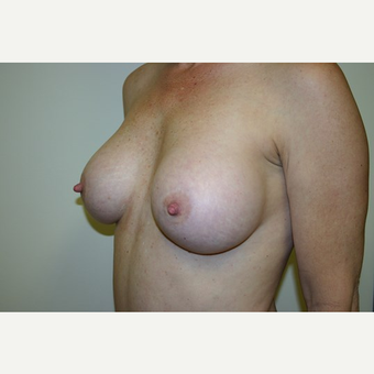 43 year old woman treated with Breast Augmentation after 3444165