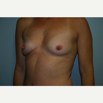 43 year old woman treated with Breast Augmentation before 3444165