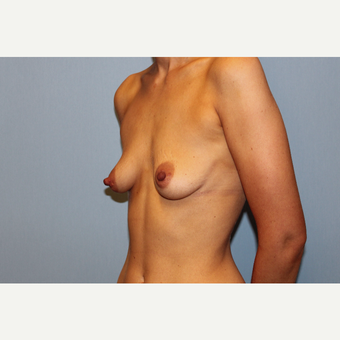 25-34 year old woman treated with Breast Augmentation before 3569836