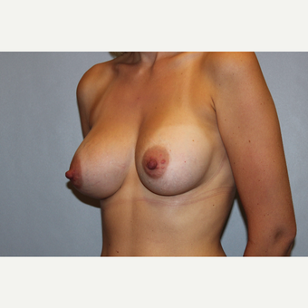 25-34 year old woman treated with Breast Augmentation after 3569836