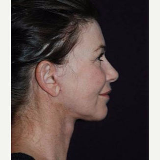 Neck Lift after 3162825