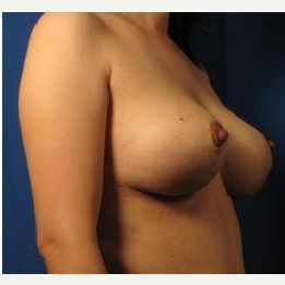 35-44 year old woman treated with Breast Augmentation after 3326990