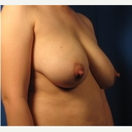 35-44 year old woman treated with Breast Augmentation before 3326990