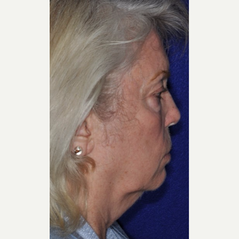55-64 year old woman treated with Facelift before 3844142