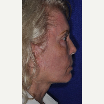 55-64 year old woman treated with Facelift after 3844142