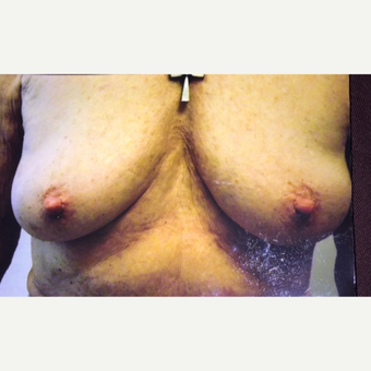 45-54 year old female treated with Nipple Surgery after 3379019