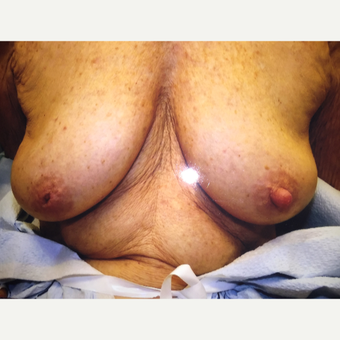45-54 year old female treated with Nipple Surgery