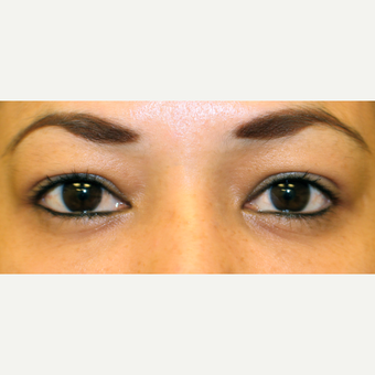 Considerations of Eye Bag Surgery in Mediterranean Skin