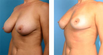 Breast Implant Removal with Internal Lift 562124