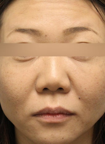 Botox to Forehead and Glabella after 1184725