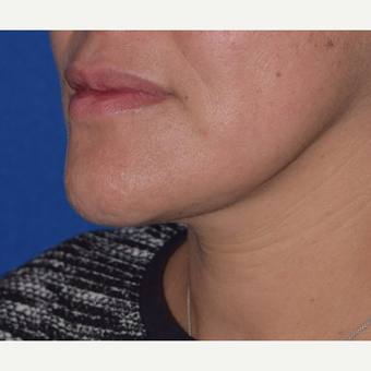 35-44 year old woman treated with Chin Liposuction after 3641465