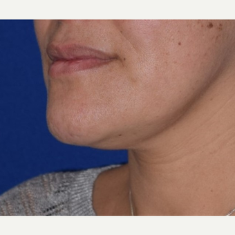 35-44 year old woman treated with Chin Liposuction before 3641465
