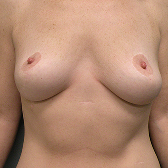 35-44 year old woman treated with Breast Augmentation before 3724625