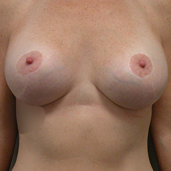 35-44 year old woman treated with Breast Augmentation after 3724625