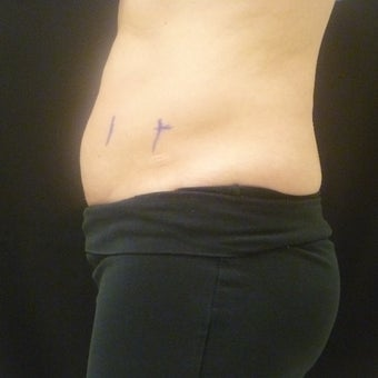 45-54 year old woman treated with CoolSculpting before 1745362