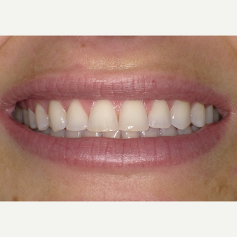 25-34 year old woman treated with Teeth Whitening after 3469778
