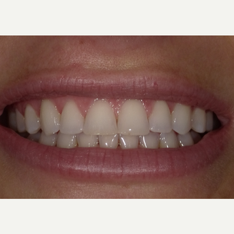 25-34 year old woman treated with Teeth Whitening before 3469778