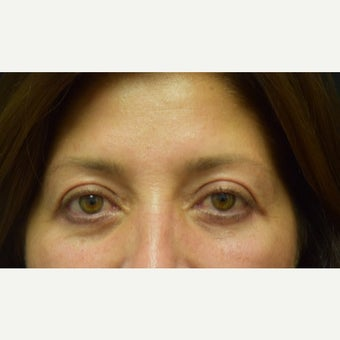 45-54 year old woman treated with Eye Bags Treatment and Eyelid Surgery after 2275603
