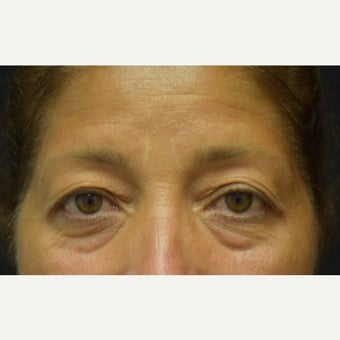45-54 year old woman treated with Eye Bags Treatment and Eyelid Surgery before 2275603