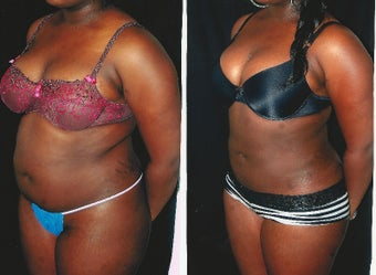 22 year old woman treated with Liposculpture to abdomen waist and back before 2342895