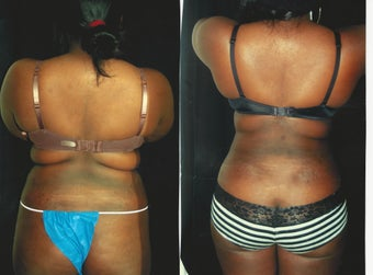 22 year old woman treated with Liposculpture to abdomen waist and back after 2342895