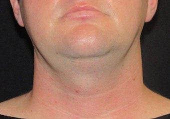 33 year old man treated with Necktite RFAL before 3683569