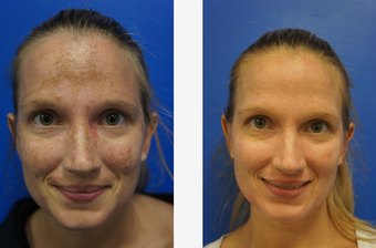 Melasma before 652451