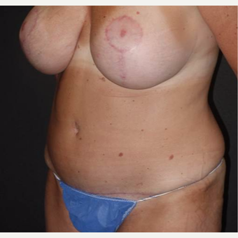 45-54 year old woman treated with Tummy Tuck after 3495861