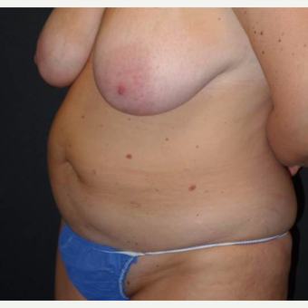 45-54 year old woman treated with Tummy Tuck before 3495861