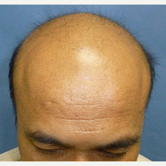 35-44 year old man treated with Hair Transplant before 3300867