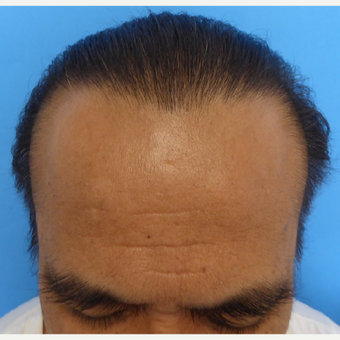 35-44 year old man treated with Hair Transplant after 3300867